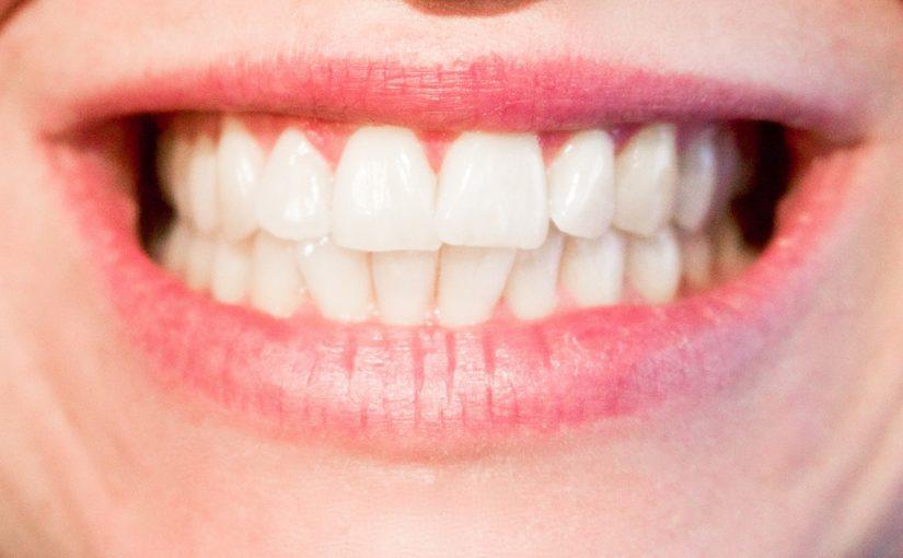 Aktualna technologia używana w salonach stomatologii estetycznej zdoła spowodować, że odzyskamy prześliczny uśmiech.